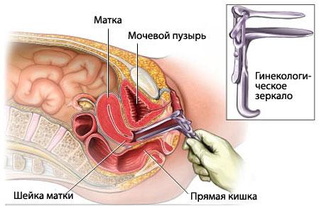 гинекологическое зеркало