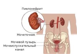 лечение пиелонефрита при беременности необходимо